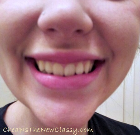 Smile Brilliant LED Teeth Whitening System Review {Before Pics} #sponsored